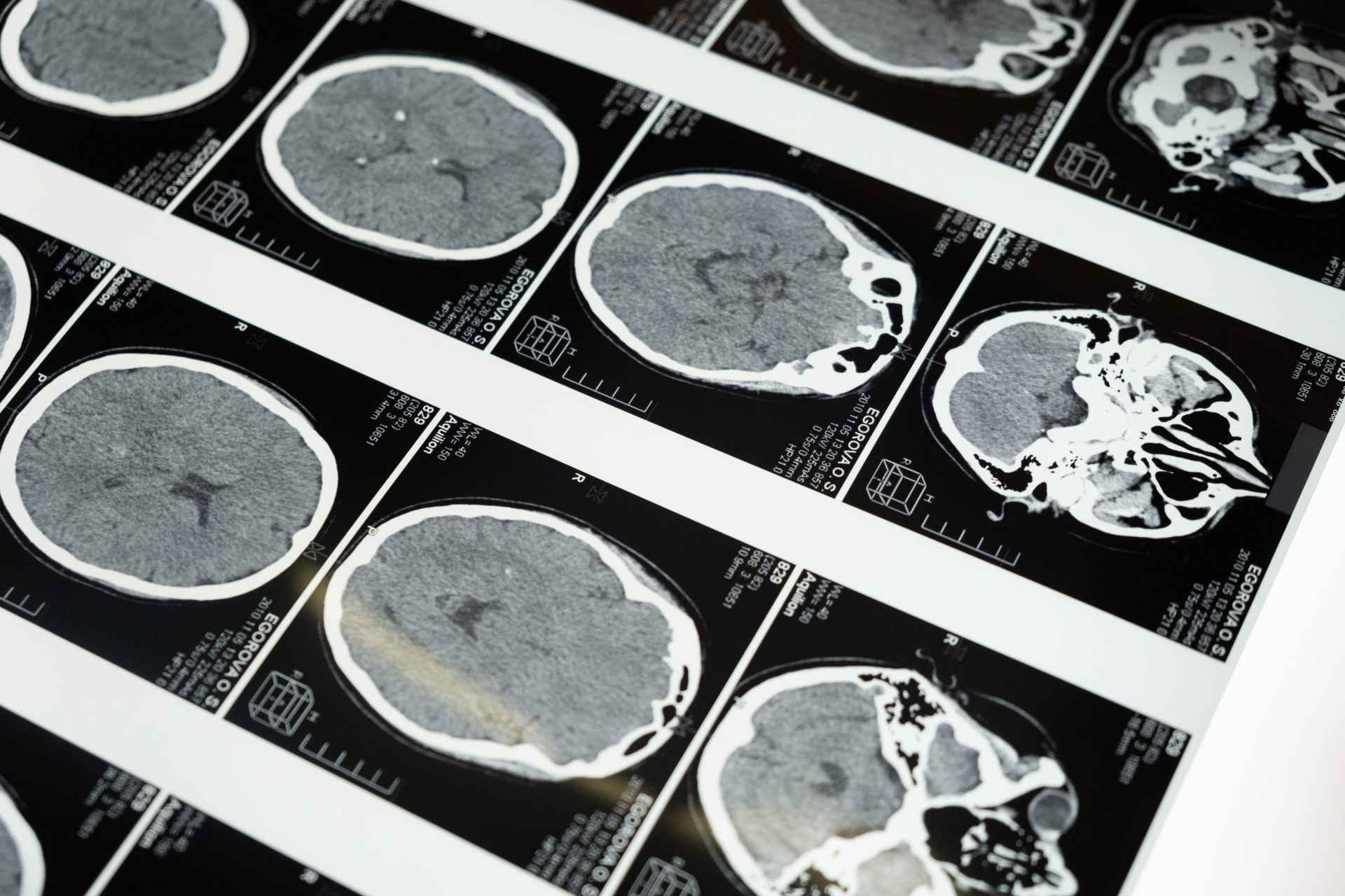brain-injury-pictures-black-white