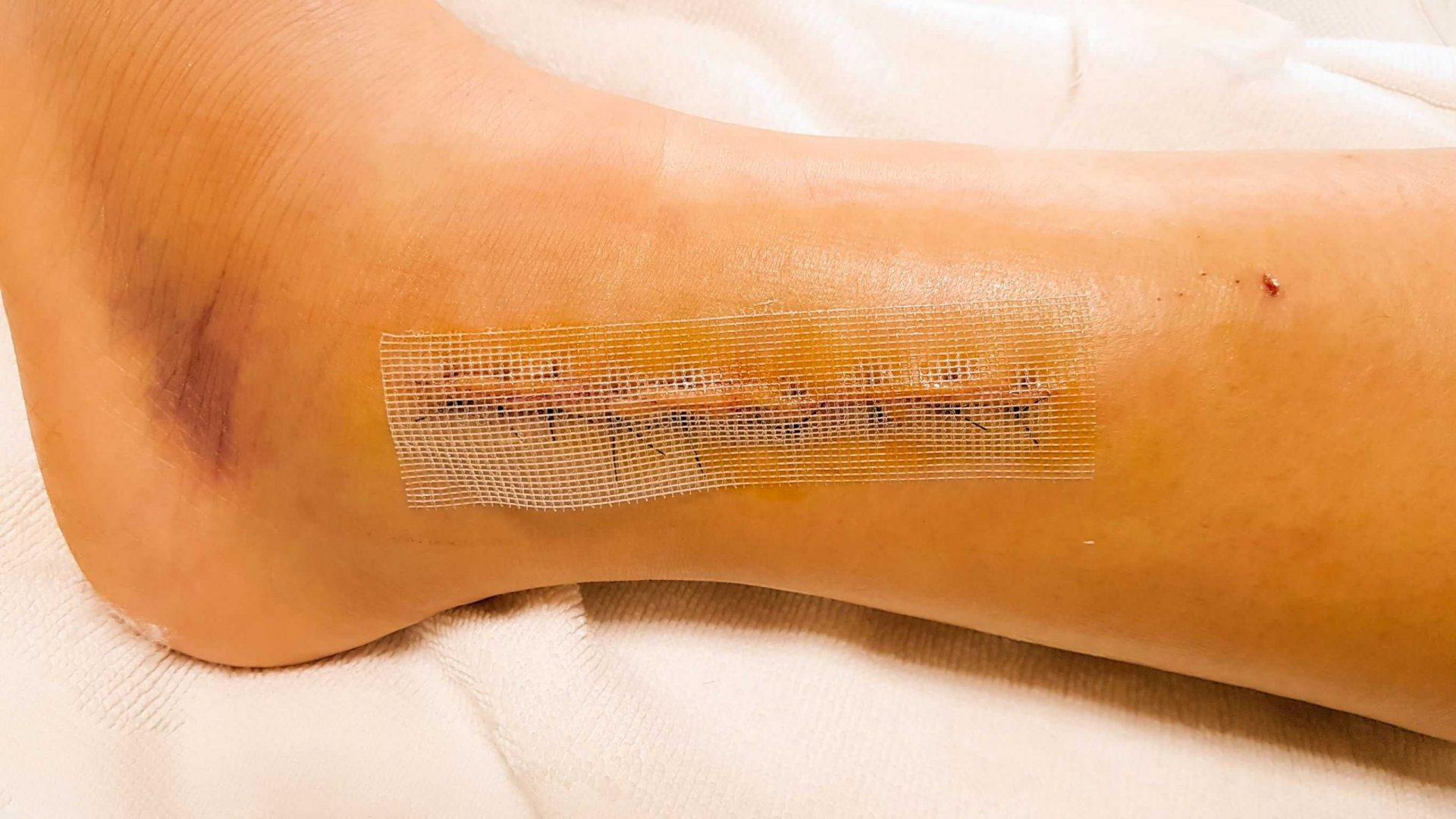 Skin Grafts Hyperbaric Therapy