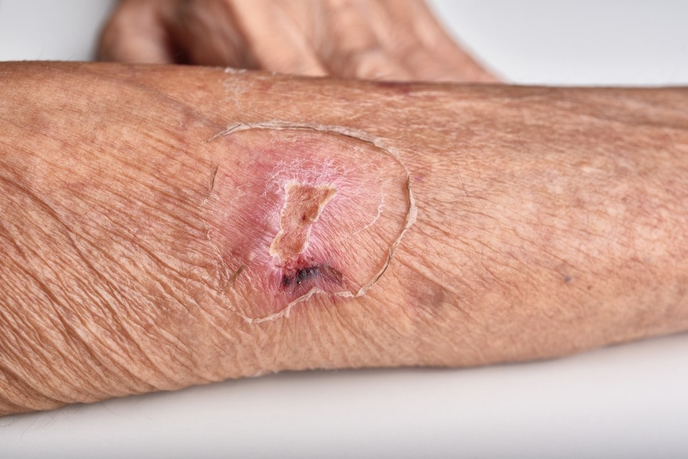 Wound Healing Hyperbaric Oxygen Therapy