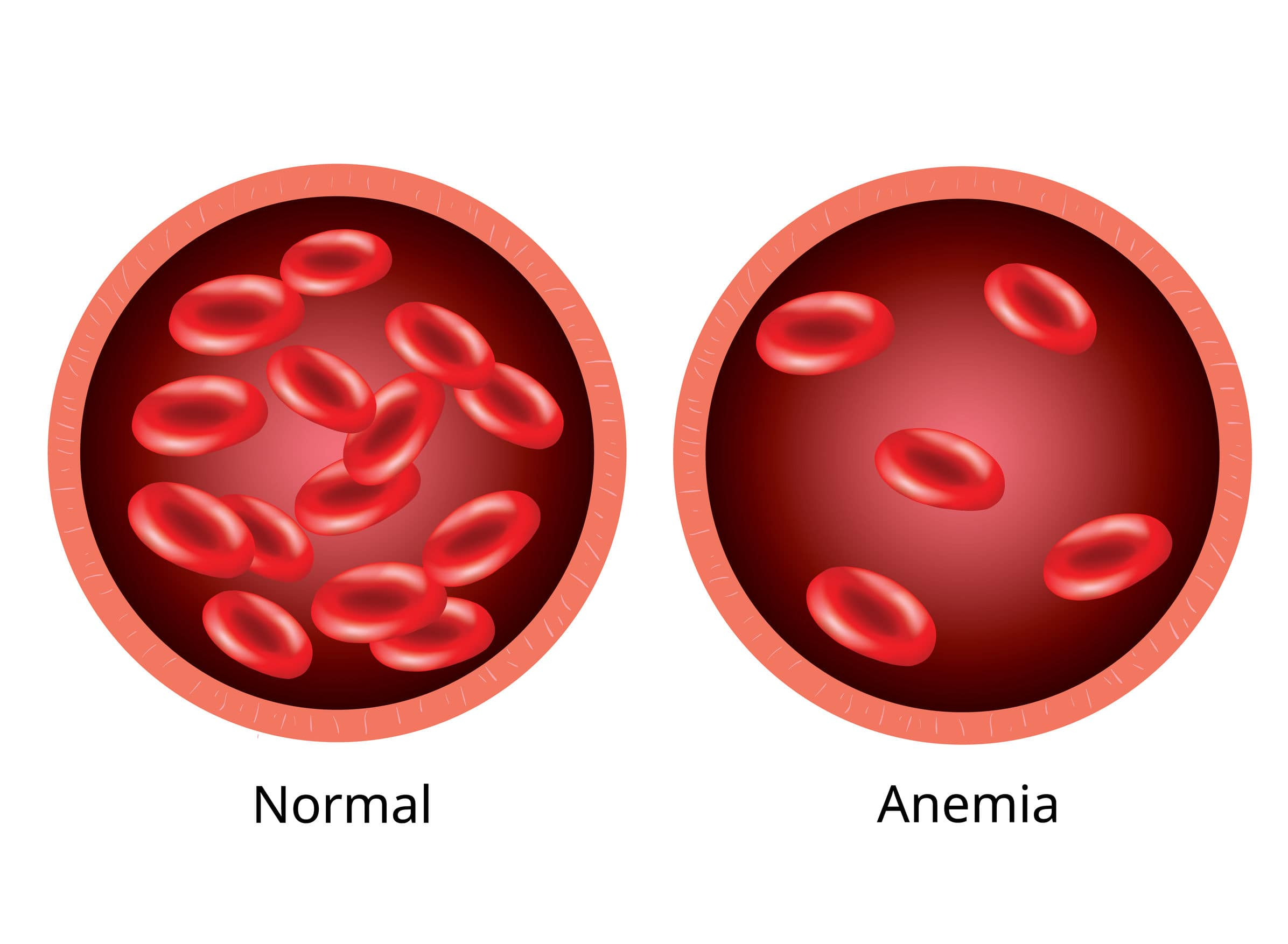 anemia-hyperbaric-therapy