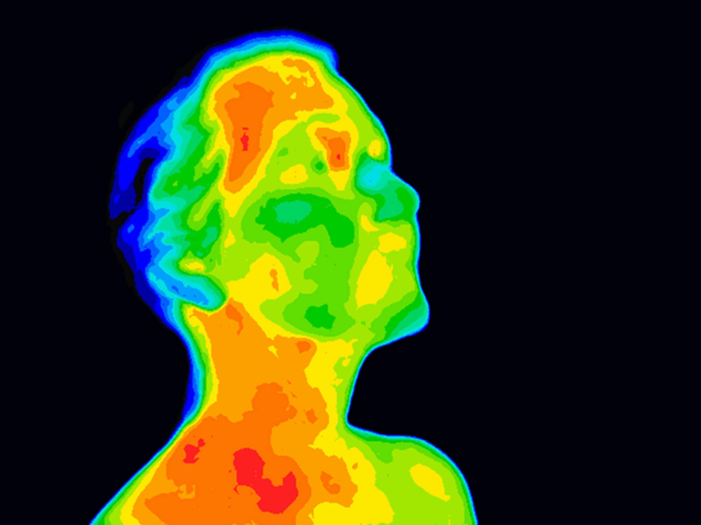 radiation injury hyperbaric therapy-min